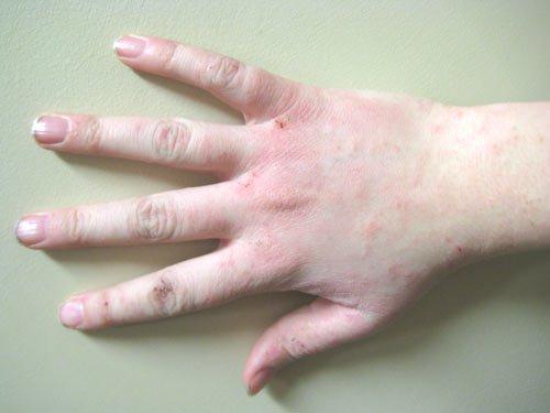 triệu chứng Lòng bàn tay bị ngứa nổi hột