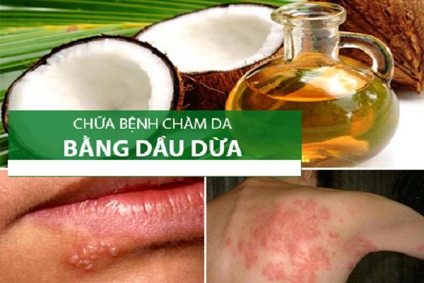Trị chàm da bằng Dầu Dừa