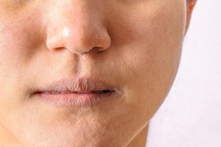 Triệu chứng bệnh chàm khô ở mặt
