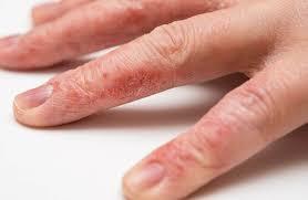dấu hiệu nhận biết chàm tay chân