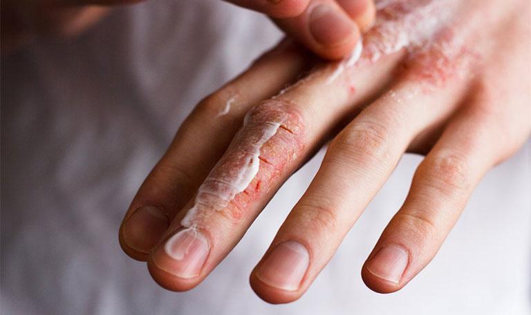 dấu hiệu bệnh chàm khô đầu ngón tay