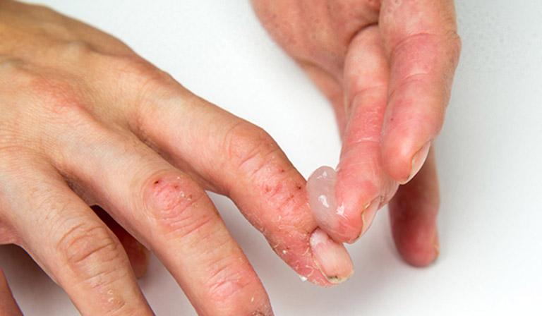 Biến chứng chàm khô đầu ngón tay