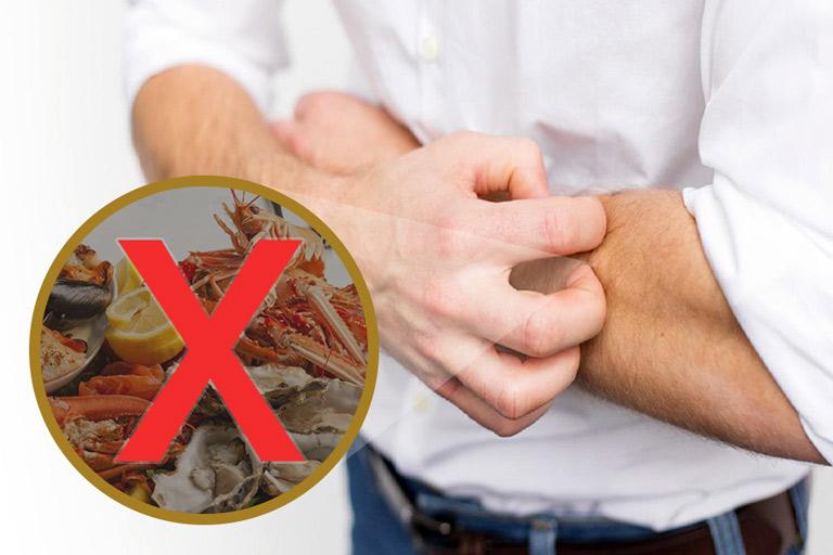 Những thức ăn phong ngứa bị chàm không nên ăn