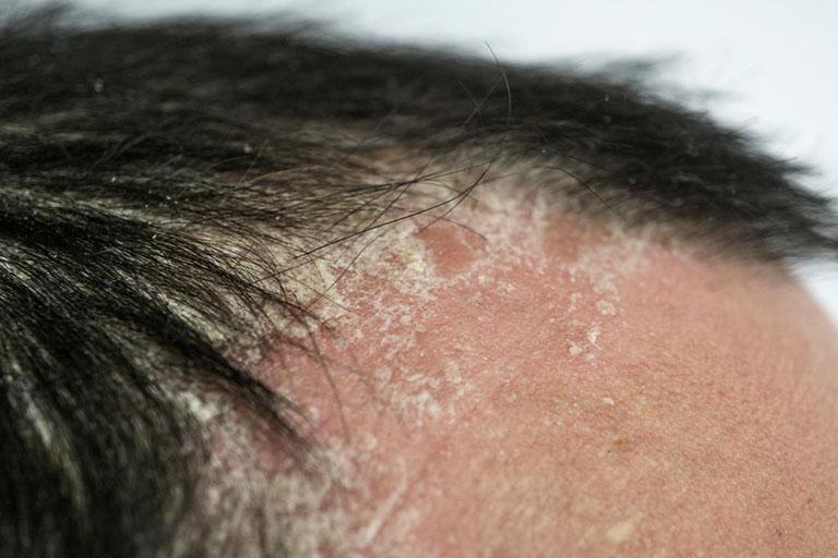 Dấu hiệu bệnh chàm da đầu