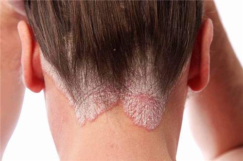 nguyên nhân bệnh chàm da đầu