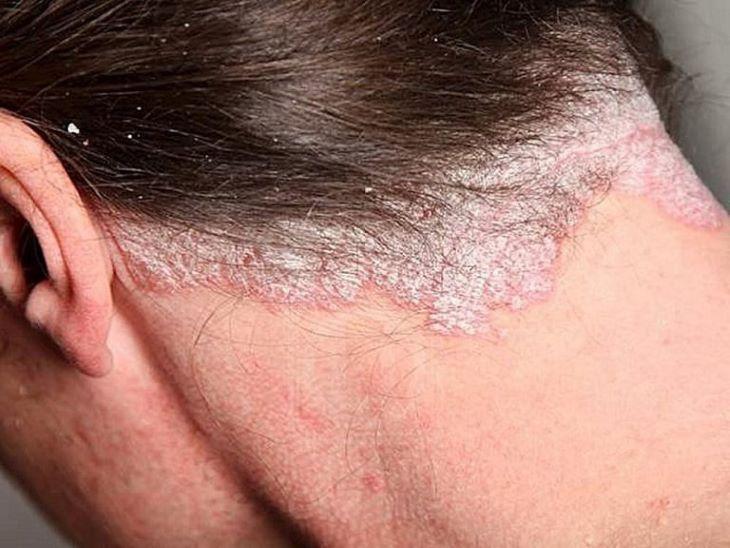 bệnh chàm da đầu chữa được không