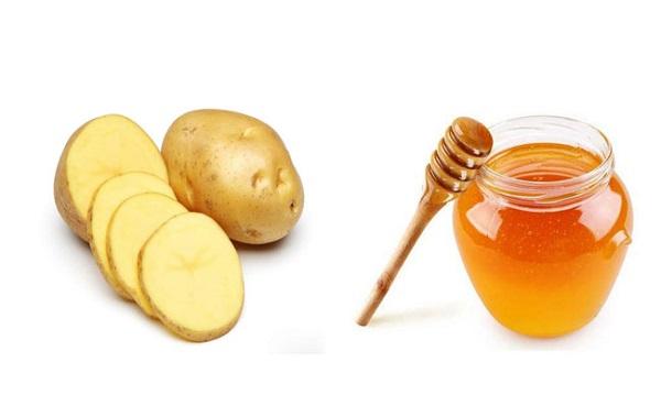 Kết hợp Khoai tây và mật ong trị bệnh chàm