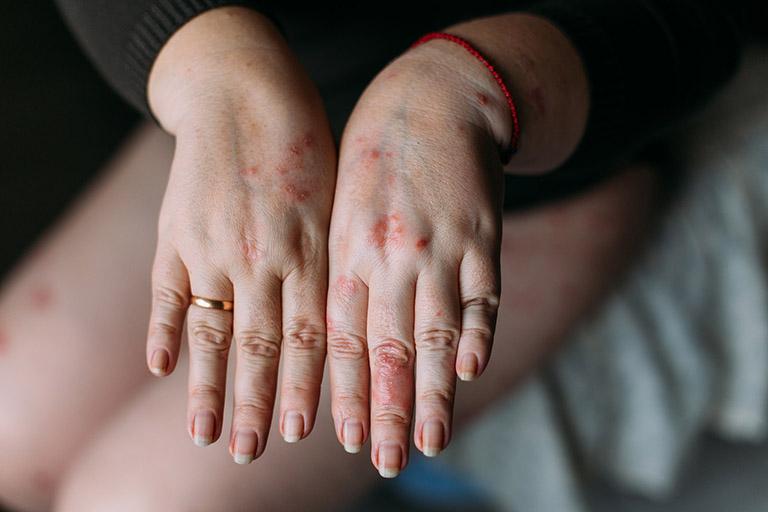 Nguyên nhân bệnh chàm ướt