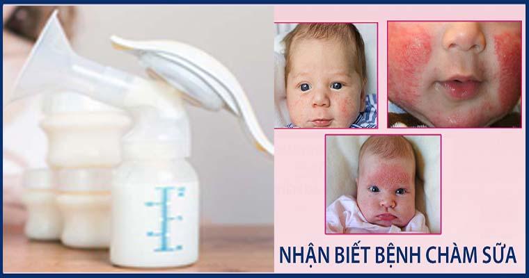 cách trị chàm sữa bằng sữa mẹ
