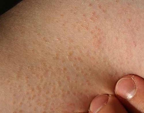 Da bị nổi sần và ngứa là hiện tượng gì