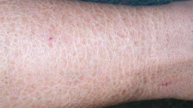 Những triệu chứng da nổi sần và ngứa
