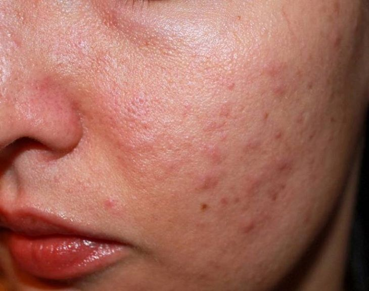 Triệu chứng dày sừng nang lông