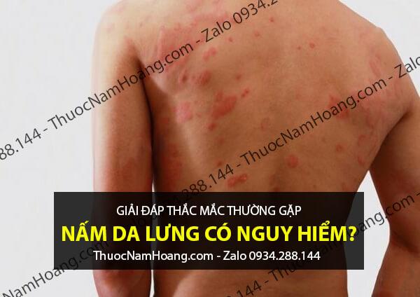 Sử dụng thuốc tây chữa nổi mẩn đỏ ở lưng