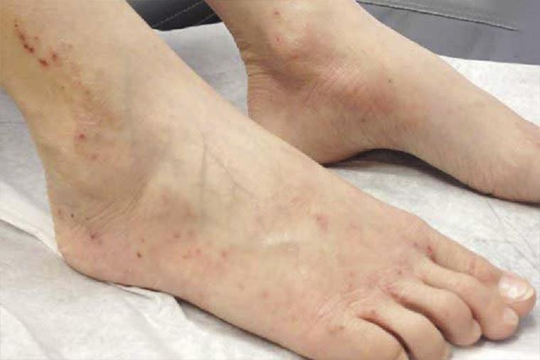 Cách khắc phục da chân khô và bong tróc