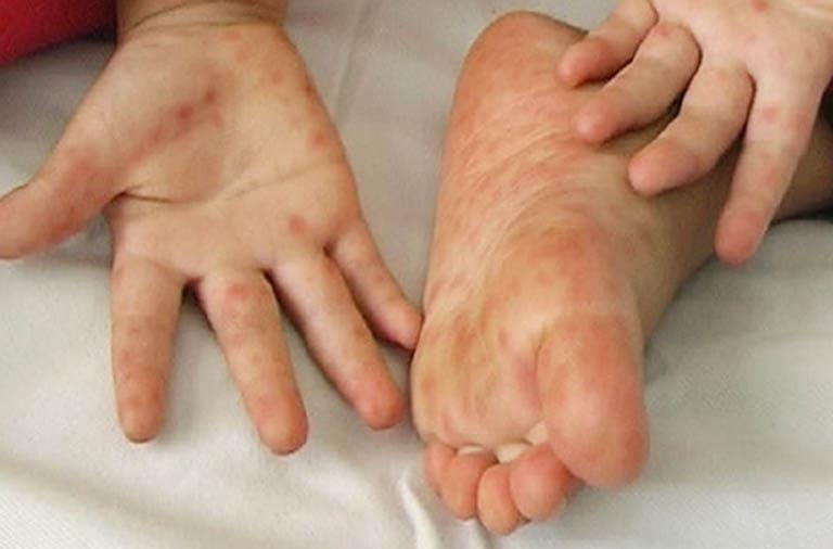 trẻ bị nổi mụn nước ở lòng bàn chân