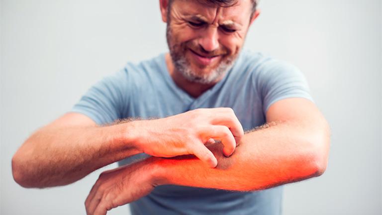 Bị Ngứa râm ran dưới da là căn bệnh gì