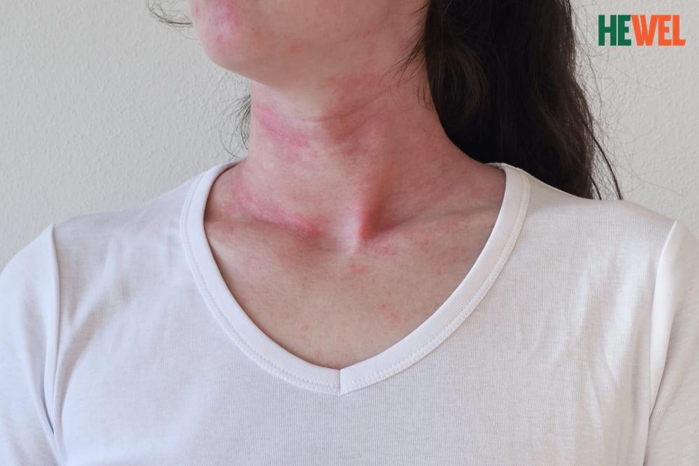 Chẩn đoán nổi mẩn đỏ ngứa ngáy khó chịu ở cổ