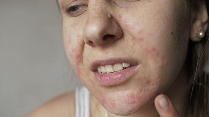 da mặt bị dị ứng nổi sần ngứa