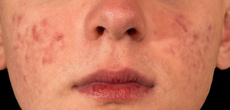 Nguyên Nhân da mặt bị ửng nổi sẩn ngứa ngáy