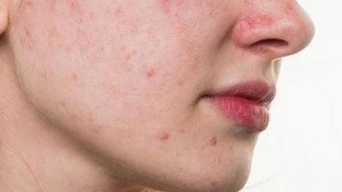 Da mặt ngứa và sần sùi lưu ý bệnh gì?