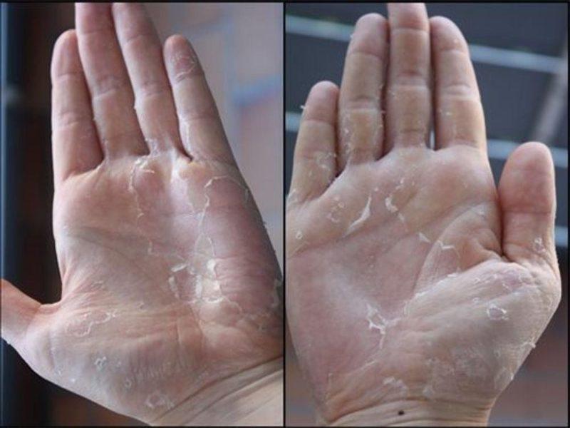 lột da tay xong bị ngứa