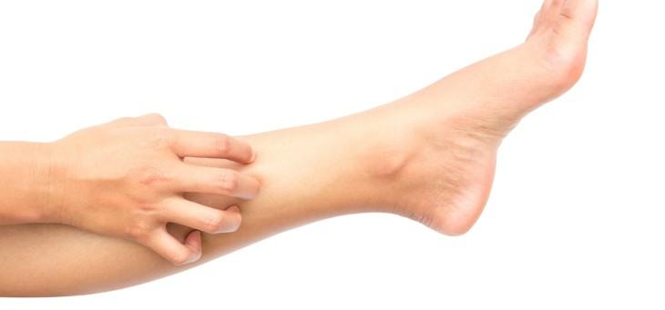 Ngứa hai ống chân do dị ứng