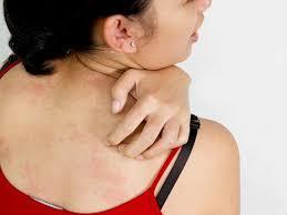 Ngứa khắp người sau khi tắm có khả năng do tắm nước cứng