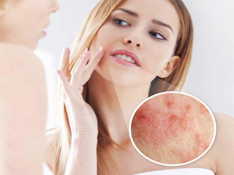 bệnh chàm môi dẫn tới tình trạng ngứa quanh miệng