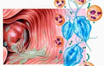 ngứa vùng kín - dấu hiệu bị bệnh viêm nhiễm âm đạo