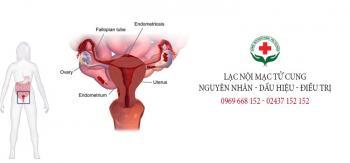 bệnh lạc nội mạc tử cung