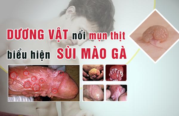 Phương pháp điều trị mụn thịt trên bao quy đầu như thế nào?