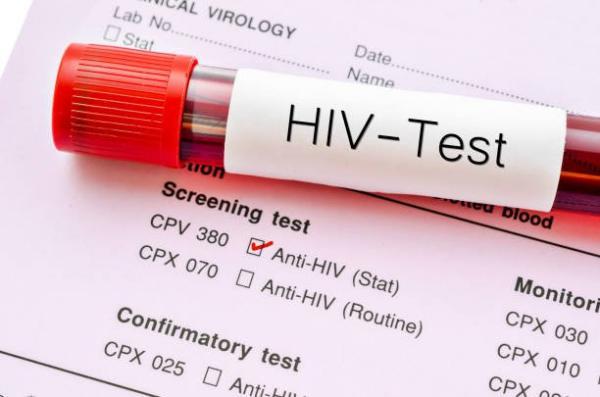20+ Dấu hiệu nhiễm HIV nhanh, chính xác và sớm nhất cho bạn