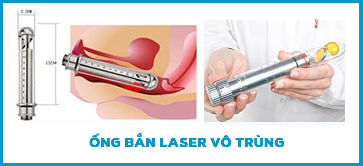 ong-ban-laser-vo-trung