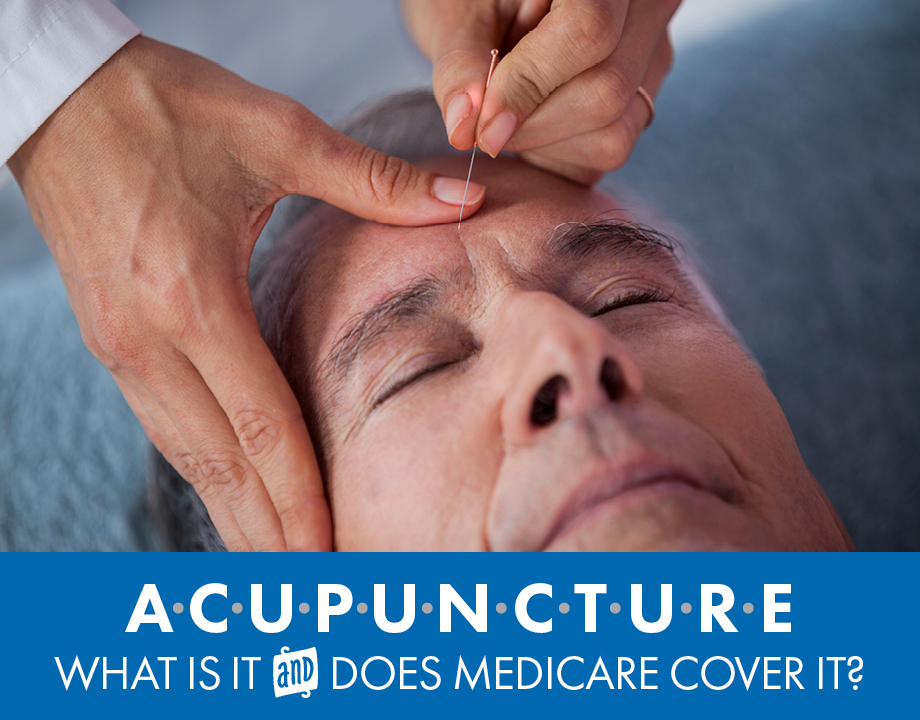 Acupuncture: What Is It and Does Medicare Cover It?