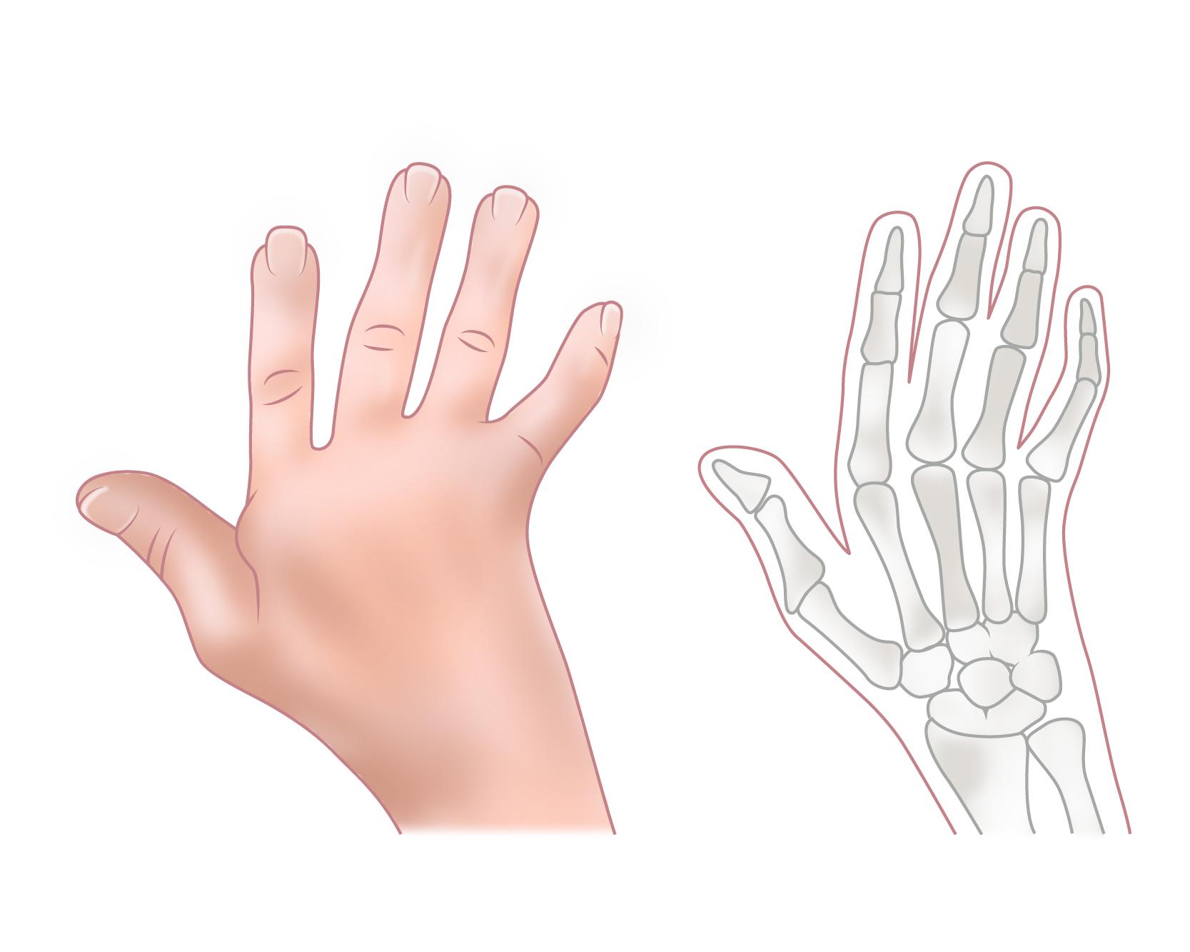 Jaccoud's Hand illustration