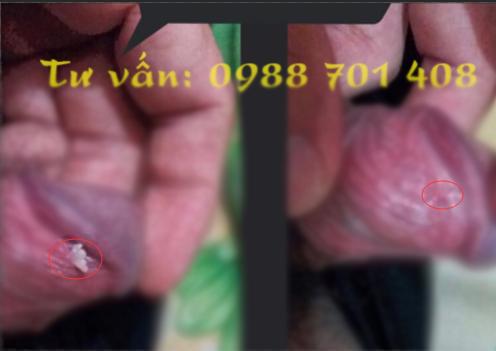 Mua thuốc Podophyllin 25 tại Bắc Ninh chữa sùi mào gà ở Bắc Ninh tận gốc