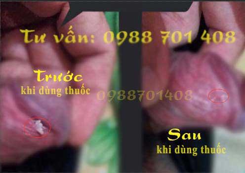 Mua thuốc Podophyllin 25 ở Lào Cai chữa Dứt Điểm sùi mào gà chính hãng
