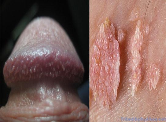 Bệnh sùi mào gà giai đoạn đầu ở nam giới