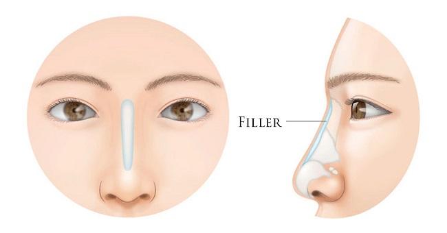 Tiêm filler mũi có ảnh hưởng gì không