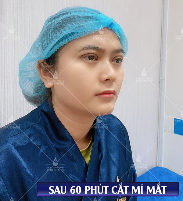 kết quả sau khi cắt mí mắt tại thẩm mỹ viện phú khang