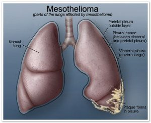 florida mesothelioma lawyer