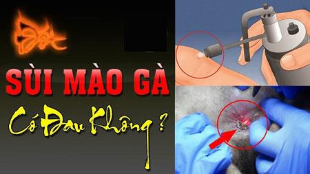 Đốt sùi mào gà có đau, để lại sẹo và tái phát không?