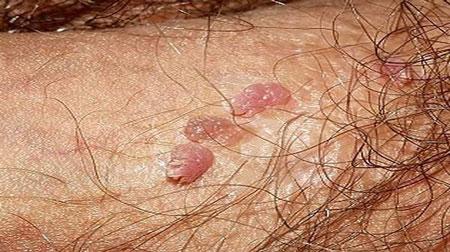 biểu hiện và triệu chứng của bệnh sùi mào gà