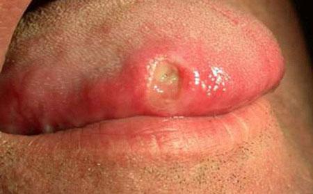 Dấu hiệu và triệu chứng của bệnh giang mai