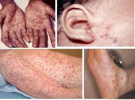 Hình ảnh bệnh lậu ở một số bộ phận trên cơ thể