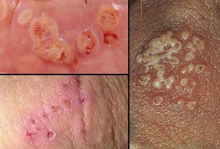 Hình ảnh vết thương do bệnh lậu gây ra trên cơ thể