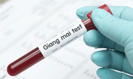 8 địa chỉ xét nghiệm & khám bệnh giang mai ở đâu tốt tại Hà Nội