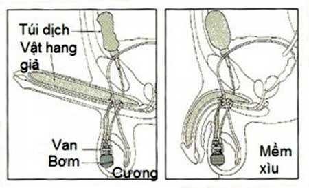 điều trị rối loạn cương dương bằng phẫu thuật cấy vật hang giả