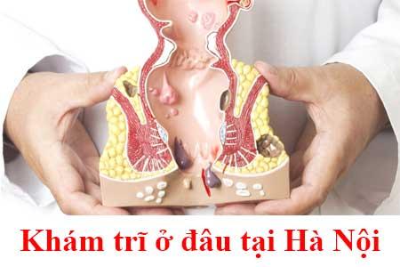 8 địa chỉ phòng khám chữa bệnh trĩ & cắt trĩ ở đâu tốt nhất Hà Nội