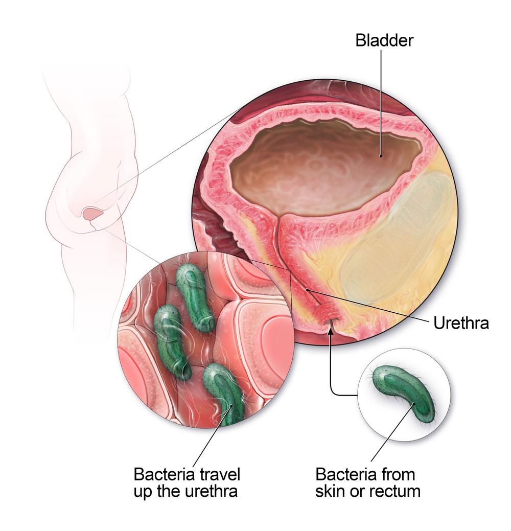hình ảnh viêm đường tiết niệu ở nam giới và nữ giới